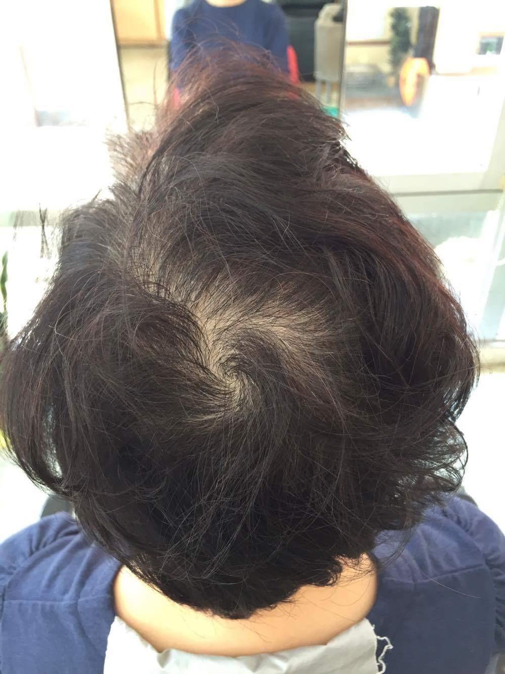 アメリオール育毛ビフォー